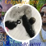 Shocking Photos: Here Are The Metals Removed From Guru's Throat And Stomach After His Closed Friend Used Him For Juju