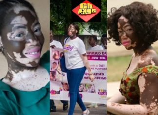 Ghanaian Nurse And Model With 'Rare' Skin Condition Fights Against Discrimination(Photos)