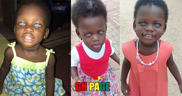 Ghanaian Girl born with Distinct Blue Eyes Stigmatized