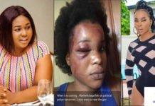 Benedicta Gafah's boyfriend beats her after aborting his child-Xandy Kamel