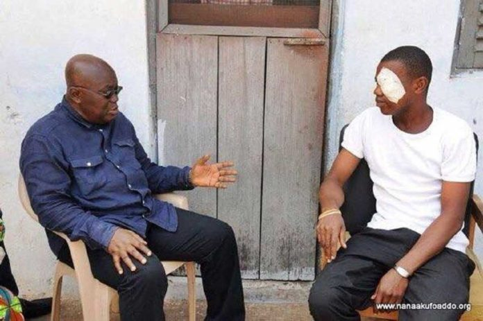 Man who lost his eye fighting for Akufo-Addo to win 2016 election dead [Photos]
