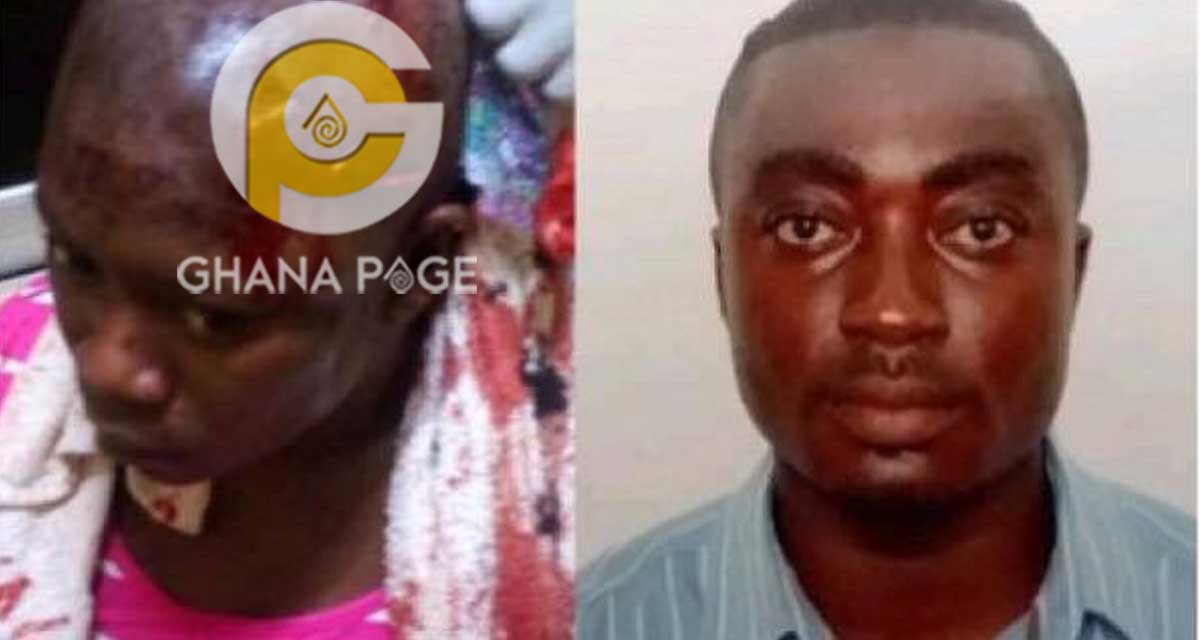 Photo: Husband stabs wife multiple times because she refused to give him money to pay a prostitute