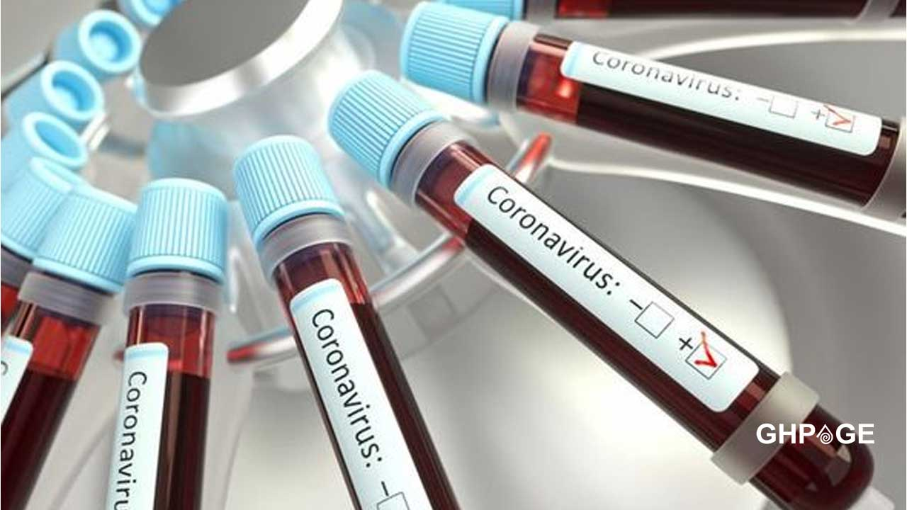 Coronavirus: Number of positive cases reaches 132