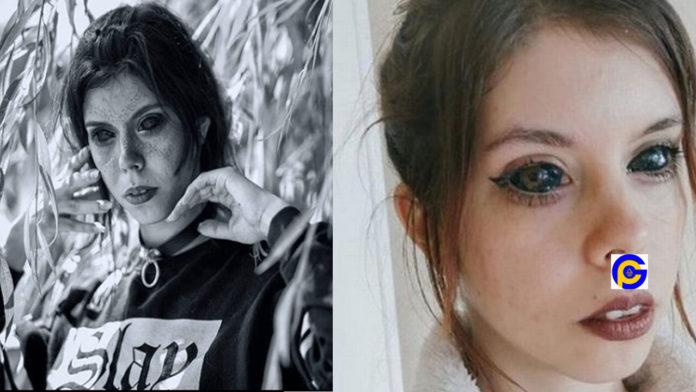Model-goes-blind-after-getting-her-eyeballs-dyed-black