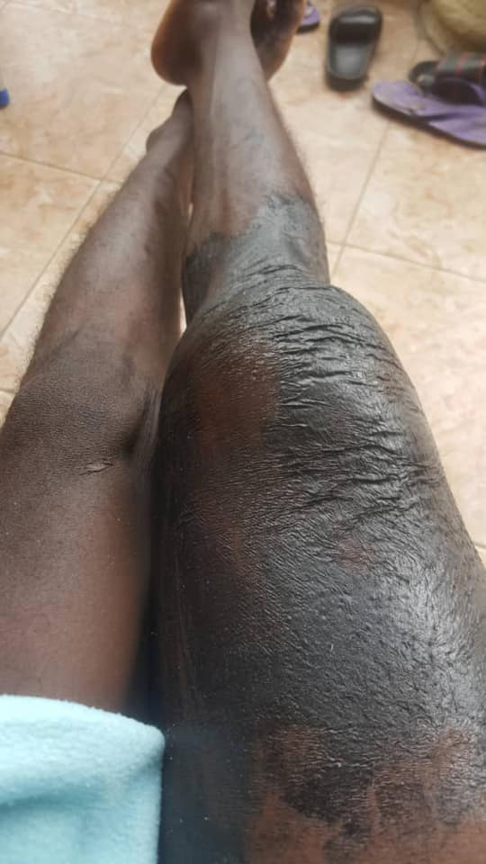 Long Face Leg