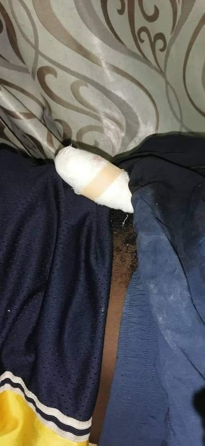 Man's penis