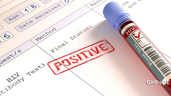 HIV positive UG student